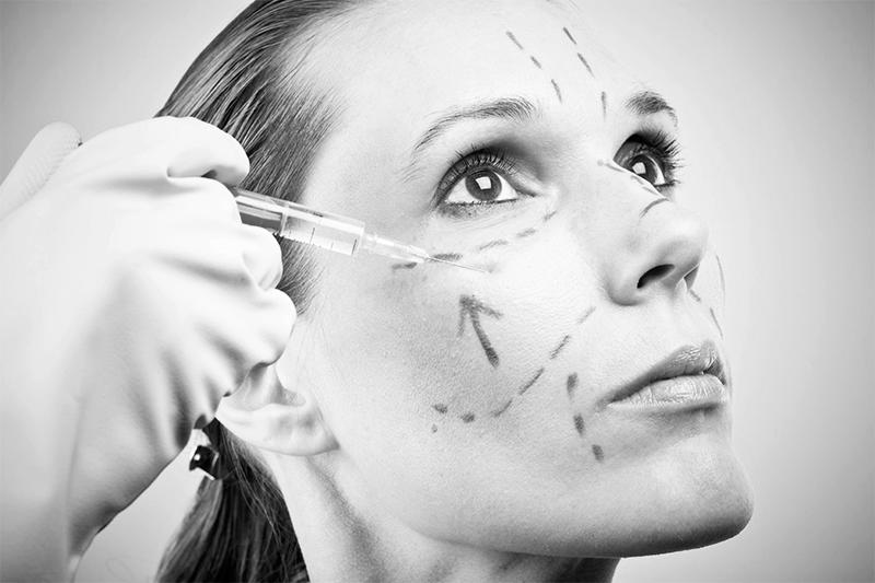 Implantes y lipoescultura facial