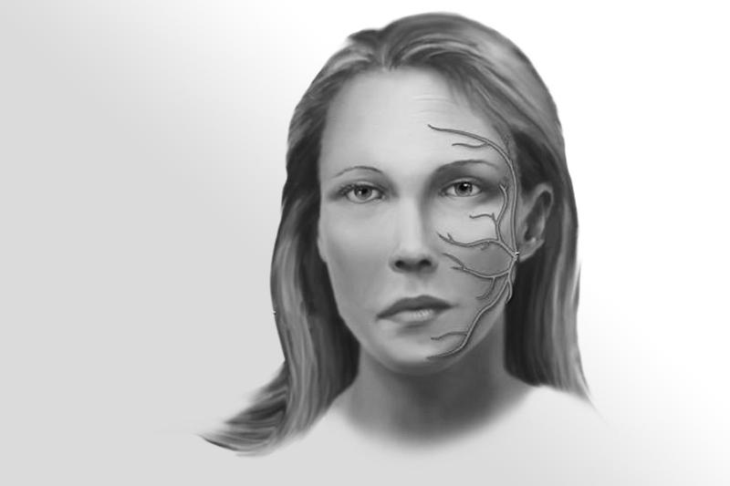 Cirugía de la parálisis facial